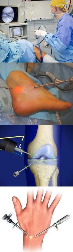 Осложнения после артроскопии коленного сустава: последствия эндопротезирования, отзывы после операции