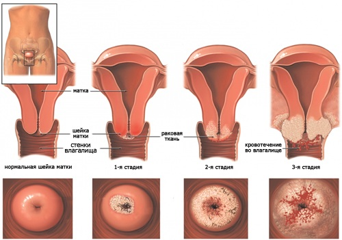 боли во влагалище при лейкоплакии