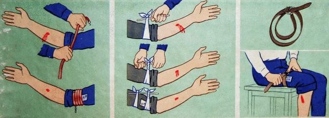Первая помощь при ранениях: огнестрельных, ножевых, ранениях живота и грудной клетки