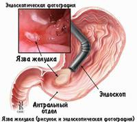 Боль в животе справа при беременности