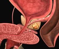 Лекарства от простатита афала отзывы