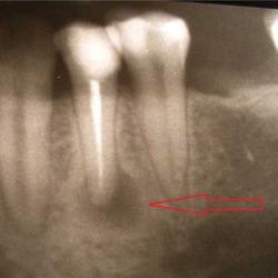 Гранулема зуба — что это такое?
