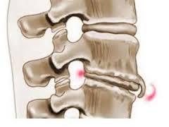 Остеофиты тазобедренного сустава лечение