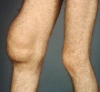 Экссудативный синовит коленного сустава