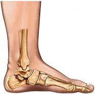Остеоартроз суставов – причины, симптомы и лечение остеоартроза, профилактика