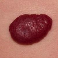 Гемангиомы на коже: причины появления на лице у взрослых