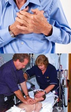 Остановка сердца: причины и механизм клинического синдрома ...