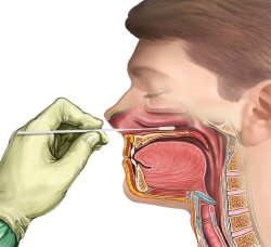 Как сделать мазок из горла 462