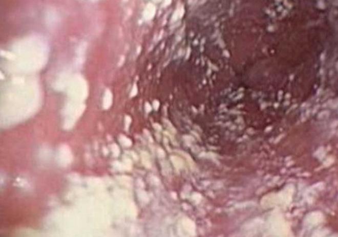 Молочница (кандидоз у женщин). Симптомы причины диагностика и лечение молочницы