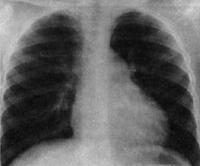 Питание при аортальном стенозе