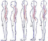 Цистит боль спина слева