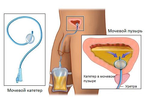 лечение тыквенными семечками от паразитов детей
