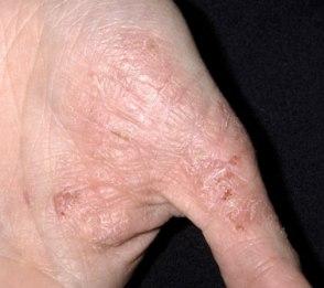 Фото и симптомы псориаза у детей