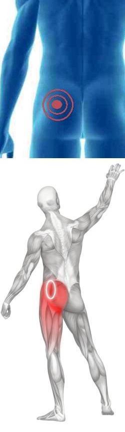 Комплекс лфк при грыже грудного отдела позвоночника