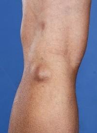 периартрит коленного сустава каблук