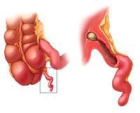 Боли в пояснице при раке кишечника