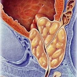Анализы на гормоны при простатите