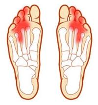 Жжение стоп ног чем лечить