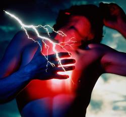 ЭКГ при инфаркте миокарда (фото с расшифровкой), кардиограмма, инфаркт миокарда на ЭКГ фото, рубец на сердце после инфаркта