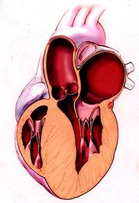 Браслет от повышенного артериального давления