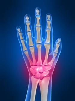 Болит кисть руки - причины. Почему болит кисть руки и какое лечение самое эффективное. - Автор Екатерина Данилова