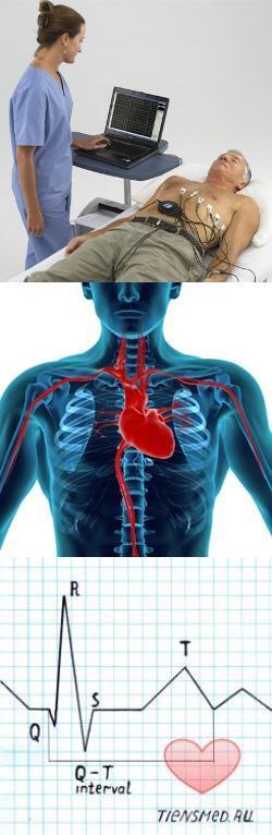 Расшифровка кардиограммы у