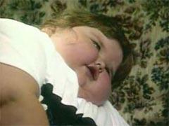 Ожирение  это болезнь