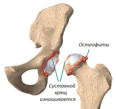 Остеофиты тазобедренного сустава фото - Все про суставы