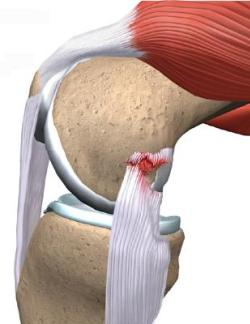 Диагностика и лечение разрыва связок на коленях