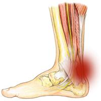 Боль и слабость в мышцах ног