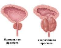 афала инструкция цены в украине - фото 5
