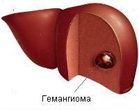 Расшифровка анализа крови на гепатит у взрослых таблица