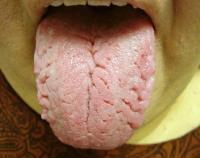 Боль сбоку языка