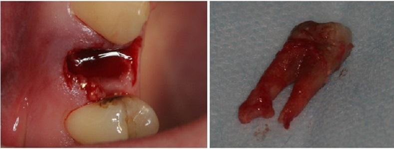 Болит шов после удаления зуба мудрости