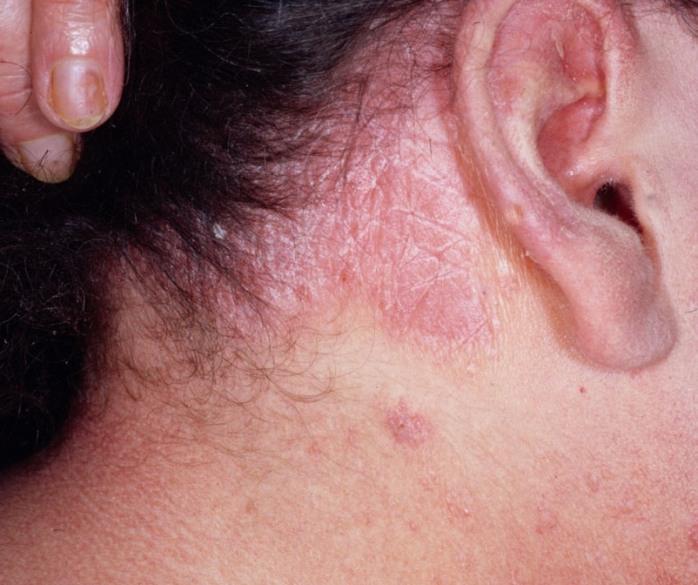 Демодекс на спине симптомы - Про паразитов