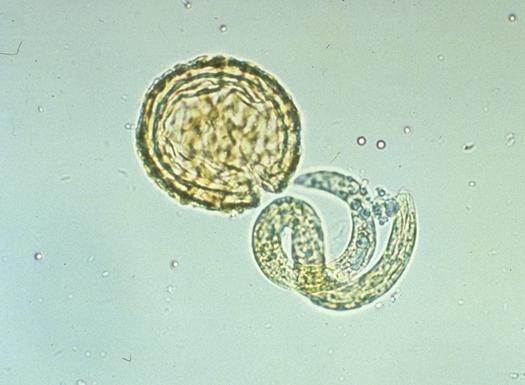 Фото 3 - личинка аскариды,