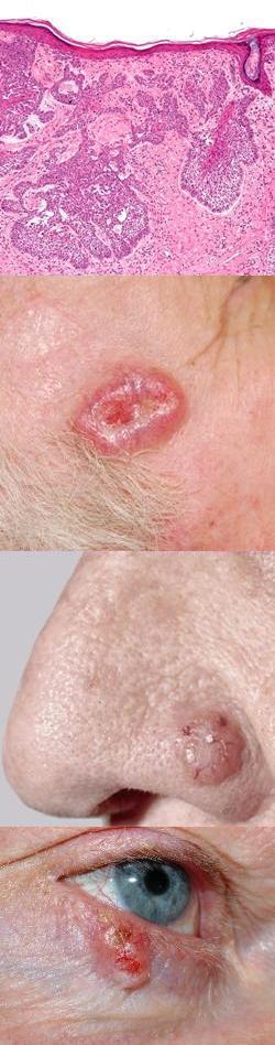 Способы лечения базальноклеточного рака