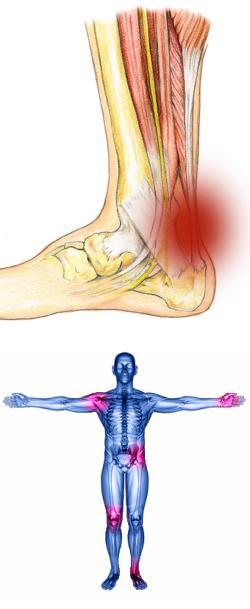 Е средства для лечения остеопороза