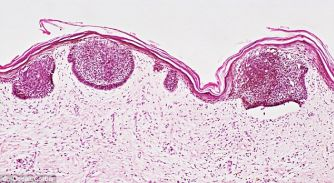 Лечение плоскоклеточного рака миндалины