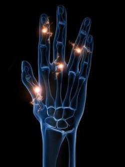 Заболевания, характеризующиеся болью в суставах пальцев рук
