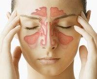 Причины мешки под глазами у женщин причины как лечить