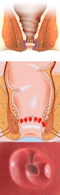 Боль в заднем проходе - причины, характер, лечение