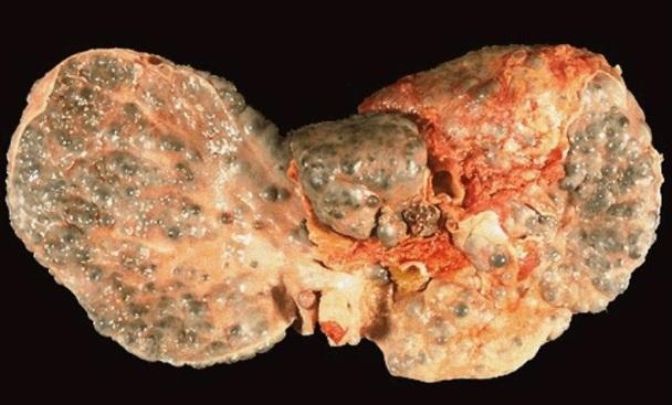 Роды с гепатитом в роддоме 4