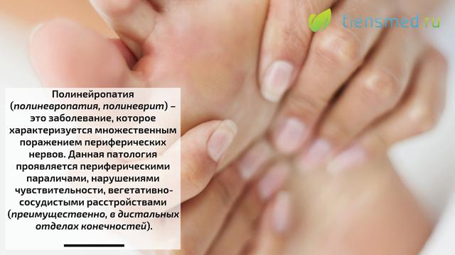 Аутоиммунная полинейропатия лечение