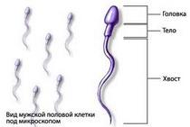 Иммунное бесплодие у мужчин и женщин