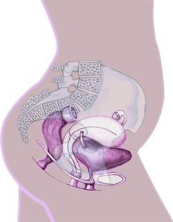 Саркома Юинга тазобедренного сустава лечение симптомы
