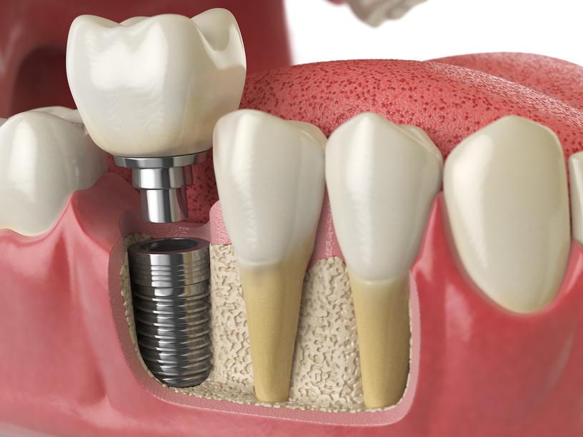 Как быстро вылечить десну после удаления зуба