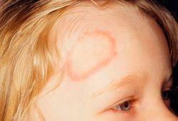 Микроспория (стригущий лишай) кожи и ногтей у детей и взрослых - возбудители инфекции, пути заражения, симптомы, лечение и профилактика, фото