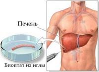 Показания к биопсии 21