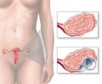 Нет секс и боль в яичниках